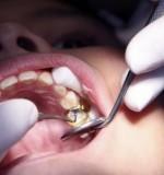 La mutuelle pour les soins dentaires